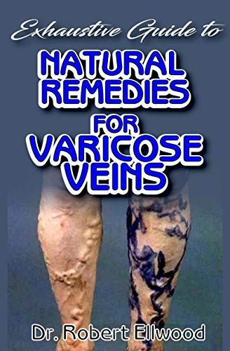 Exhaustive Guide To Natural Remedies for Varicose Veins: A Simple guide to all there is to know about varicose veins, its conventional treatments as well as its natural remedy! Discover the truth!