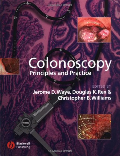 Colonoscopy  Principles And Practice