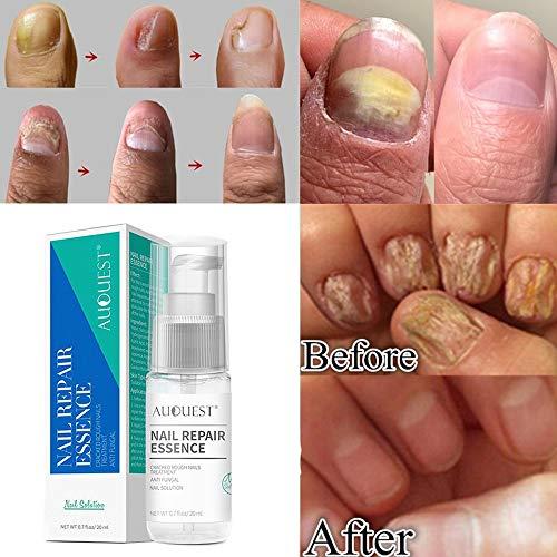 Clearance Sale!UMFun Nail Repair Liquid Treatment Onychomycosis Paronychia Anti Nail Infection Repair Solution