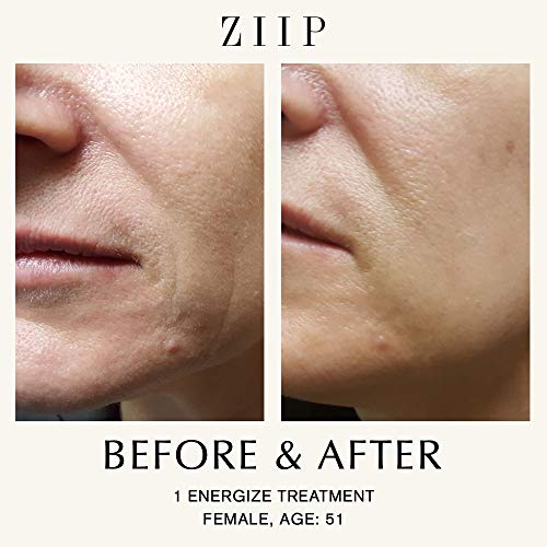 ZIIP Beauty Microcurrent Facial Device - Microcurrent Face Lift Machine For Lifting, Sculpting, and Skin Tightening, Wrinkles, Pigment, and Acne - An Alternative To A Microdermabrasion Machine by ZIIP (Image #3)