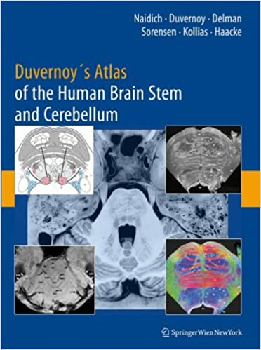 Duvernoys Atlas Of The Human Brain Stem And Cerebellum High Field