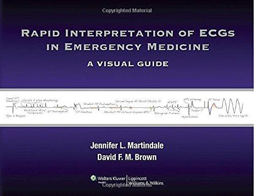 Rapid Interpretation of ECGs in Emergency Medicine: A Visual Guide by Jennifer L Martindale MD (2012-04-20)