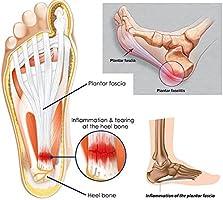 Flat Feet, Foot Pain, Heel Pain