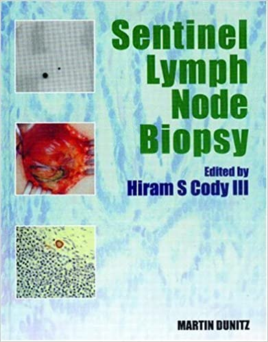Sentinel Lymph Node Biopsy
