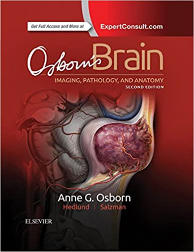 Osborn's Brain: Imaging, Pathology, and Anatomy 2nd Edition 513mX0DwOuL._SX384_BO1,204,203,200_