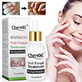 Nail Fungus Oil Nail Care,Nail Fungus Treatments,Fungus Stop,Nail Care Treatment of Anti-Fungal Solution,Effective