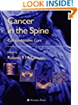 Cancer in the Spine: Comprehensive Care