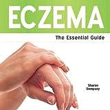 Eczema, Sharon Dempsey, 1861441304