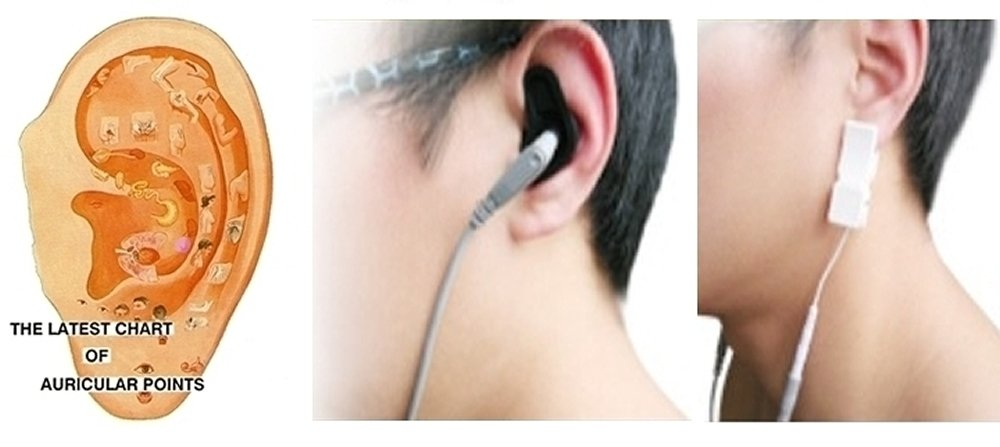 Natural Tinnitus Treatment Device Medicomat Tinnitus Therapy by Medicomat (Image #6)