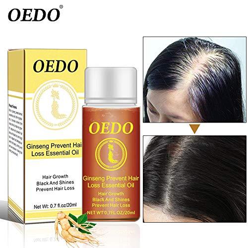 LtrottedJ Hair Growth Essential Oil Moustache Styling Moisturizing Gentlemen Care 20ML - Alchemy Bronze New