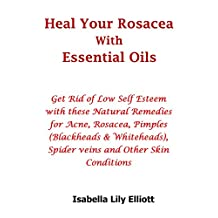 Heal Your Rosacea with Essential Oils: Get Rid of Low Self Esteem with these Natural Remedies for Acne, Rosacea, Pimples (Blackheads & Whiteheads), Spider veins and Other Skin Conditions