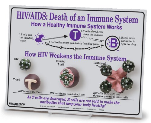 "HEALTH EDCO W43116 HIV/AIDS Death of an Immune System Easel 3D Display, 12"" Length x 9"" Height"