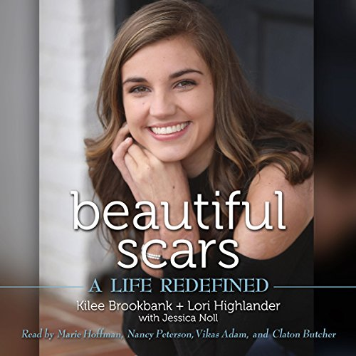 Read Beautiful Scars: A Life Redefined<br />R.A.R
