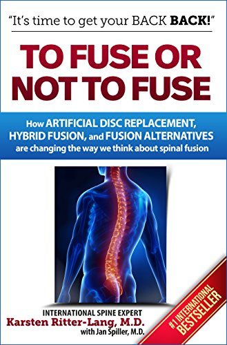 Fuse Not Artificial Replacement Alternatives ebook