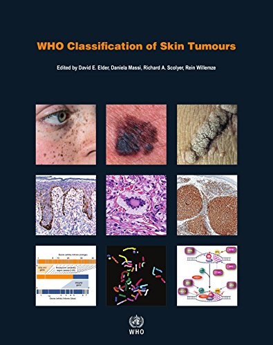 Pdf Health WHO Classification of Skin Tumours (Medicine)