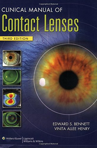 Clinical Manual of Contact Lenses]()