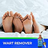 Wart Remover Liquid Rapidly Eliminates Both Plantar and Common Warts, Papillomas, Skin Tags with no Harm and Irritation | Advanced Natural Formula | Effective Painless Wart Removal Treatment