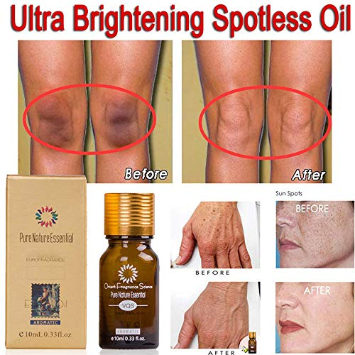 Creazy 2 Pcs Brightening Spotless Oil Dark Spots Removal Age Spots Hyper (Apple Brightening Mist)