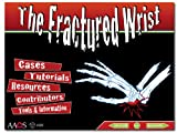 img - for The Fractured Wrist: A Virtual Fellowship Interactive Multimedia Program book / textbook / text book