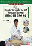 Traditional Chinese Medicine Cures All Diseases-Cupping Therapy for the Stiff Neck, Hives and Acne