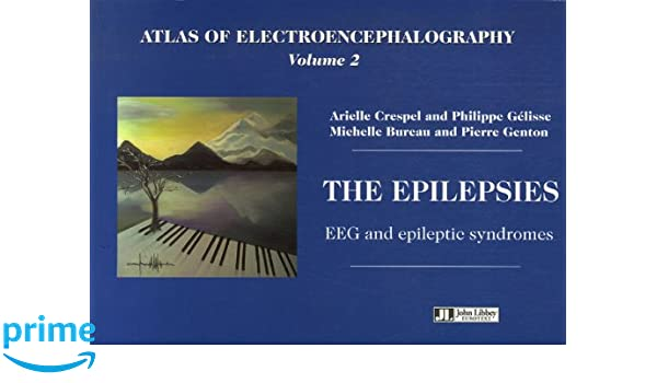 Atlas of electroencephalography vol 2 the epilepsies eeg and atlas of electroencephalography vol 2 the epilepsies eeg and epileptic syndromes v 2 9782742006007 medicine health science books amazon fandeluxe Gallery