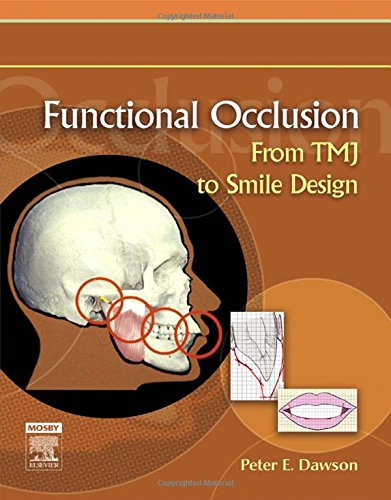 Functional Occlusion: From TMJ to Smile Design by Peter E Dawson