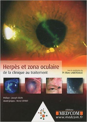 Herpes Et Zona Oculaire De La Clinique Au Traitement Labetoulle