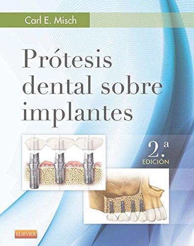 Descargar Libro Prótesis Dental Sobre Implantes Carl E. Misch