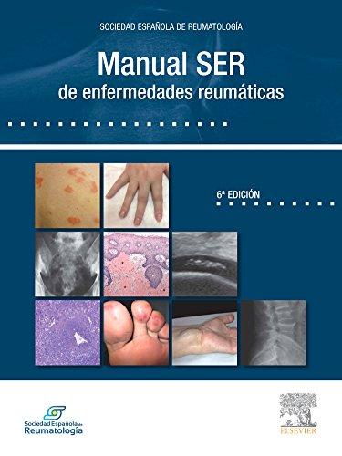 Descargar Libro Manual  De Reumatología, 1e Ser