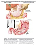Netter's Illustrated Human Pathology Updated