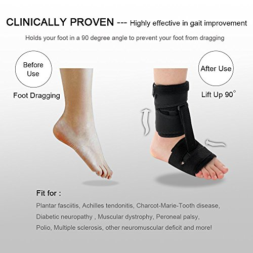 Right or Left Drop Foot Brace,Plantar Fasciitis Splint,Day/Night Dorsal Splint,Foot up Brace Prevent Dragging,Ware Barefoot/Inside Shoes,for Stroke,Achilles Tendonitis,Muscular Distrophy by igoeshopping (Image #1)