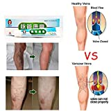 relieve Sizet Varicose Veins Treatment Cream for Leg Relieve Vasculitis Cream 20g