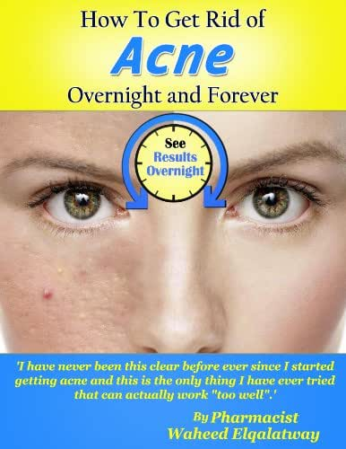 How To Get Rid of Acne Overnight and Forever