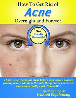 how can i get rid of acne overnight