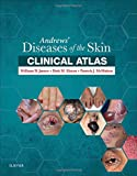 img - for Andrews' Diseases of the Skin Clinical Atlas, 1e book / textbook / text book