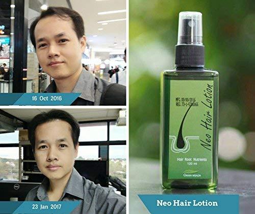 - 3 UNITS OF GIFT SET NEO LOTION GROW HAIR 120 ml. FREE GIFT [Get Free Tomato Facial Mask & Ceramine UV Line Ginkgo Plus Whitening Cream 8.50ml.]