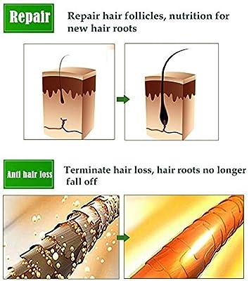 Tratamiento para el Cabello,Crecimiento del Cabello,Tratamiento Cabello,Aceite para Crecimiento del Cabello,Hair Serum,Estimula el Crecimiento Cabello para Hombres y Mujeres: Amazon.es: Belleza