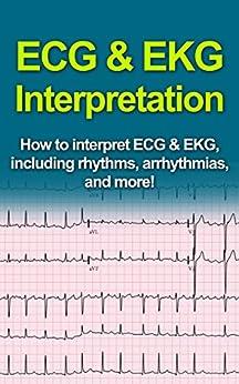 Learn to interpret ecg rhythms