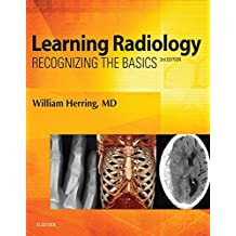 Learning Radiology E-Book: Recognizing the Basics