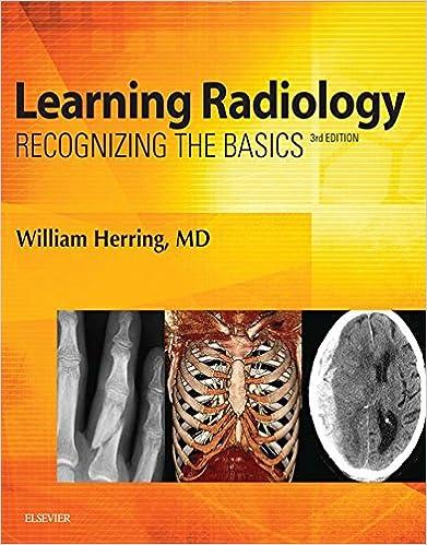Learning Radiology E-Book: Recognizing the Basics - Kindle
