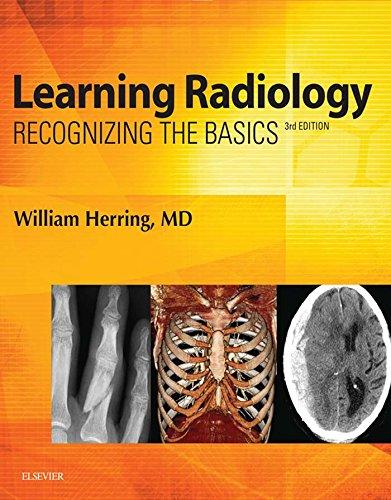 Learning Radiology: Recognizing the Basics Pdf