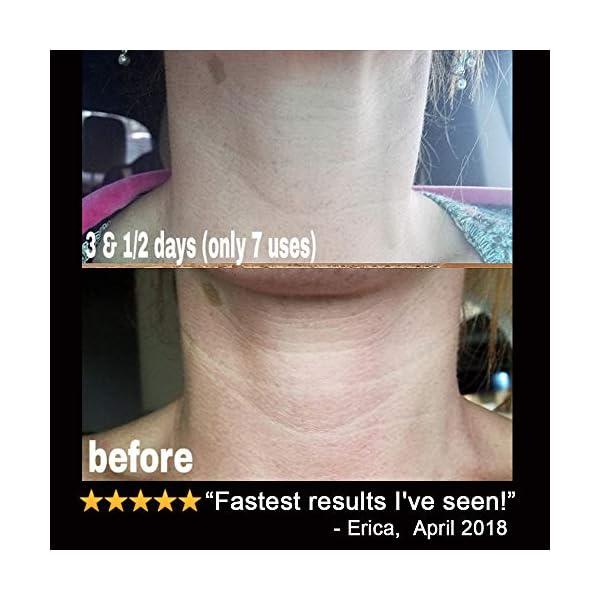 Beauty Shopping LilyAna Naturals Retinol Cream for Face – Retinol Cream, Anti Aging Cream,