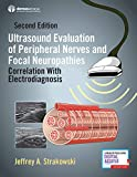 Ultrasound Evaluation of Peripheral Nerves and