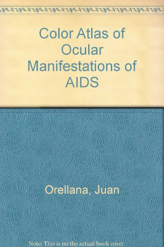 Color Atlas of Ocular Manifestations of AIDS: Diagnosis and Management