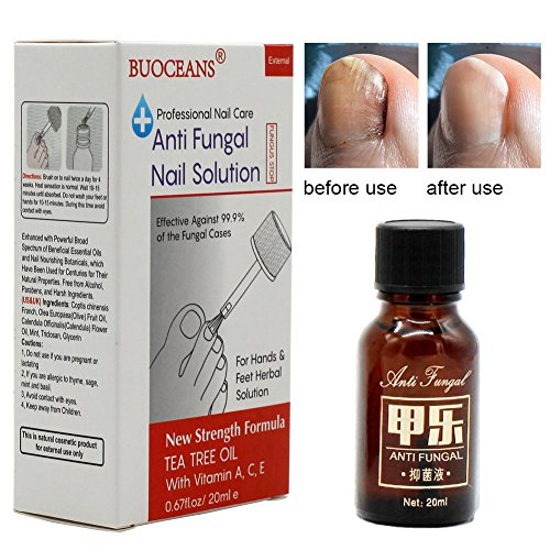 Fungal Nail Infection Home Treatment
