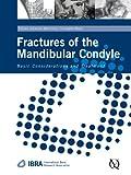 Fractures of the Mandibular Condyle: Basic