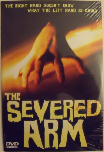 The Severed Arm -