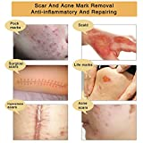 TCM Scar and Acne Mark Removal Gel Cream