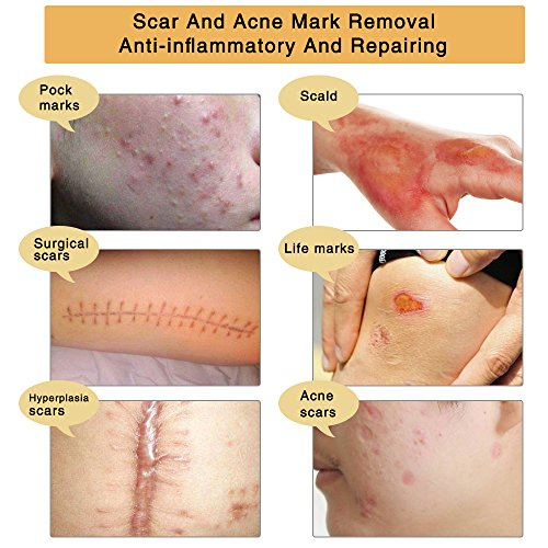3 Pack TCM Scar and Acne Marks Removal Gel, Scar Removal Cream for Face & Body Anti-inflammatory Sterilization - Old Scars, Burns, Stretch Marks, Acne Spots