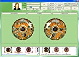 2014 CE FCC NEW 5.0 MP USB Iriscope Iris Analyzer